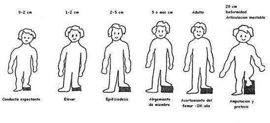 hemihipertrofia