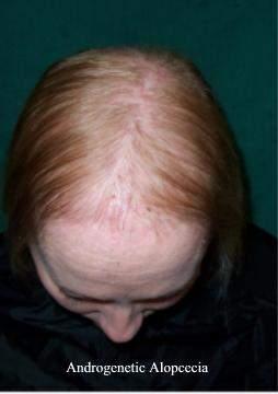 Numero la máscara para los cabellos las revocaciones de la foto