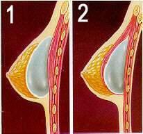 Cual es la mejor marca de prtesis mamarias? - Dr
