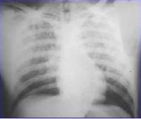 Síndrome de Embolismo Graso - EcuRed