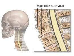 Concepto de esguince cervical
