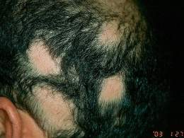 Las máscaras de los polvos de mostaza para los cabellos a los cabellos puros