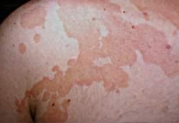 Micoza superficiala a pielii de tipul pitiriazis versicolor