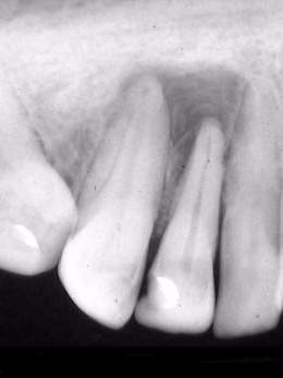 Granuloma-periapical.jpg