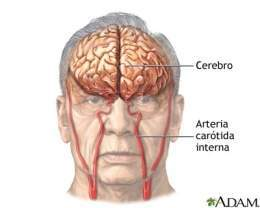 Accidente-cerebrovascular.jpg