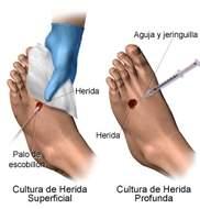 Heridas y hemorragias power point