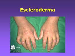 0d84c3f102717 Escleroderma - EcuRed