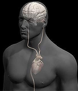 Y presión arterial trombosis