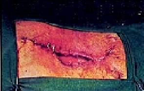 celulitis en herida operatoria