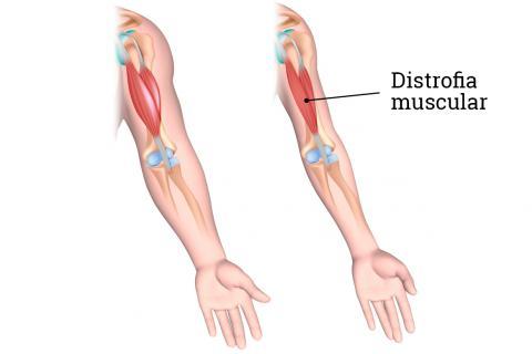 Resultado de imagen para Información sobre Distrofia muscular de Duchenne