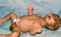 Tetano diagnostico neonatal de