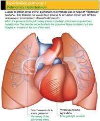 Hipertensión pulmonar - EcuRed