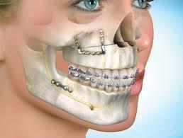 deformaciones dentofaciales ecured