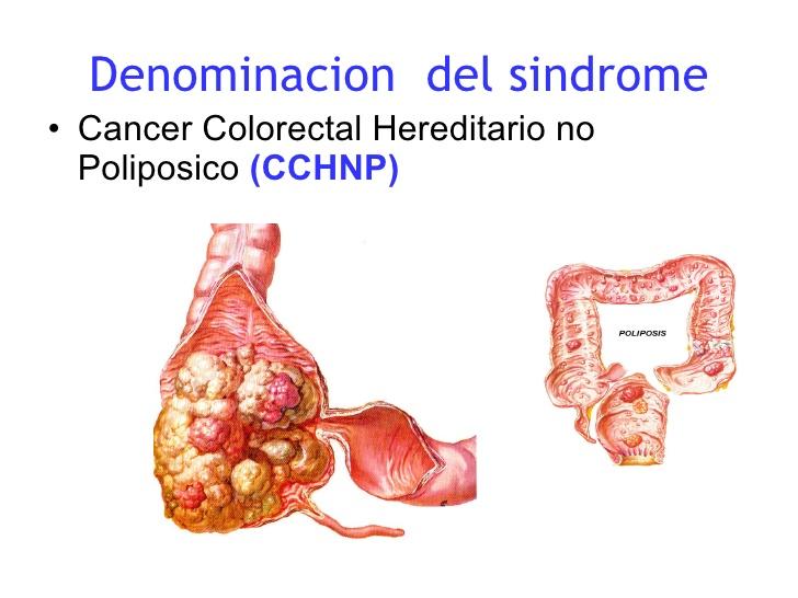 cancer de colon no poliposico îndepărtarea verucilor genitale din uretra la bărbați