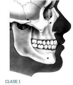 Oclusión dental - EcuRed 190ca9c9c657