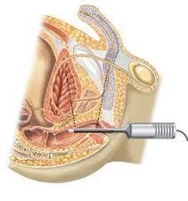 biopsia prostata anestesia local para
