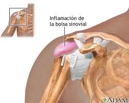 Las ideas acerca de prostata sintomas dolor de espalda