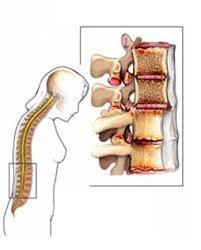 Los músculos de las espátulas duele en la espalda