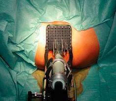 Braquiterapia de prostata