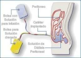 Duele fuerte sobre la espalda entre la espátula y la columna vertebral que esto
