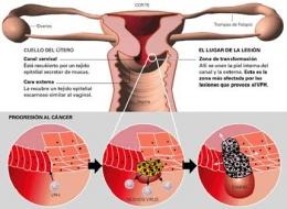 ampicilina para próstata