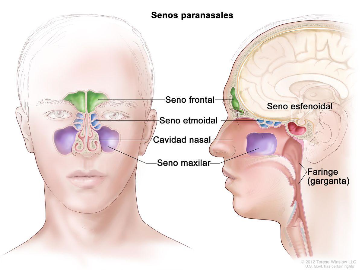 agenesia senos frontales