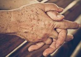 manchas marrones en la piel por la edad