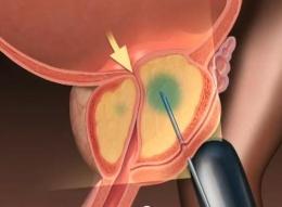 Prostatitis kezelése Malysheva- val