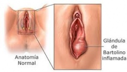 glandula de bartolino inflamada causas