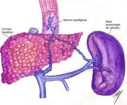 Síntoma de hipertensión portale