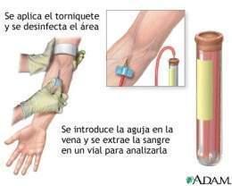 antigeno especifico de prostata niveles normales