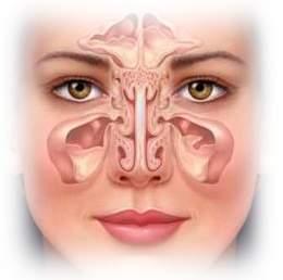 Sinusitis - EcuRed