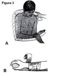 Inmovilización total de miembro superior manteniendo las posiciones  funcionales articulares (A) y Manera de inmovilizar la mano y los dedos (B) 121e0a5c687d