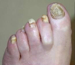 Infecciones Por Hongos En Las Uñas De Las Manos Y De Los