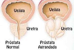 porque después de la resección de la próstata se produce la eyaculación