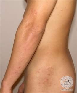 herpetiform dermatitis