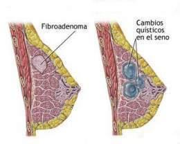 Fibrosis quistica en senos causas