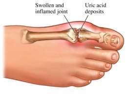 que comer para bajar el colesterol y acido urico acido urico alto pies hinchados indice de acido urico en alimentos